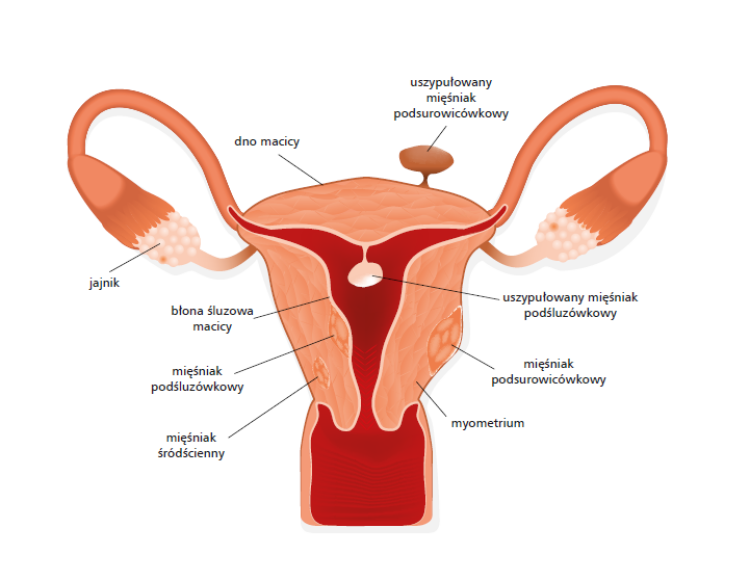 Histerektomia - wskazania, przebieg operacji, rekonwalescencja
