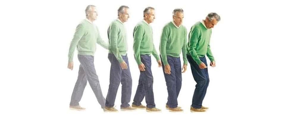 Znalezione obrazy dla zapytania Choroba Parkinsona